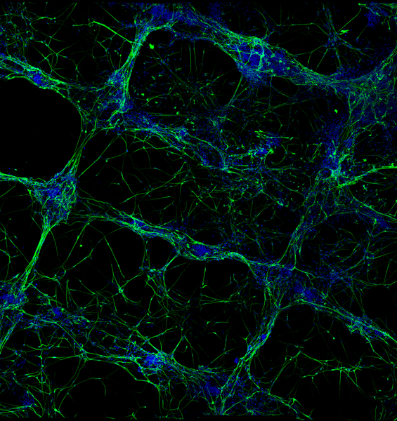 We Can Now Bio-Print Neurons