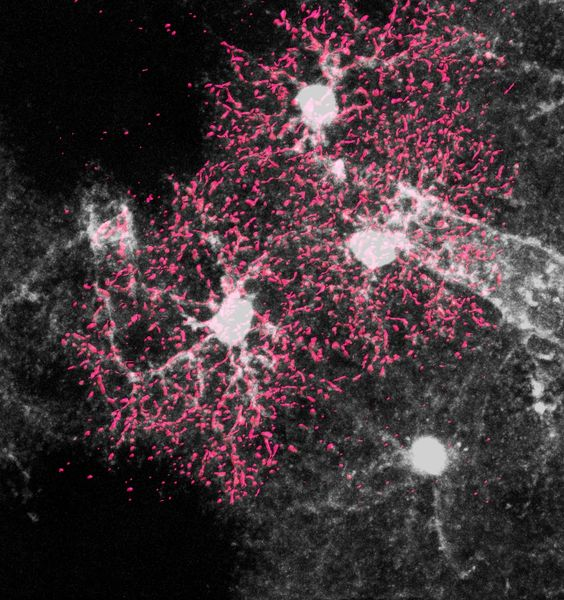 """And so we went out to see the stars again"". New Sapienza study sheds light on the role of stellate cells in our brain development"