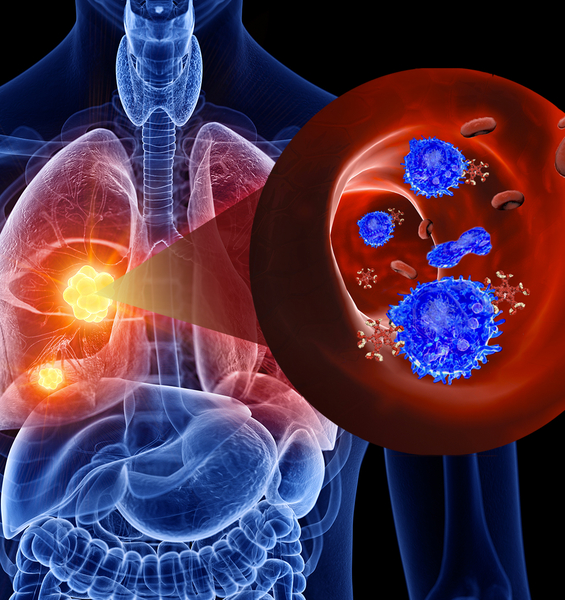 Immunotherapy in Lung Cancer: towards Personalised Medicine