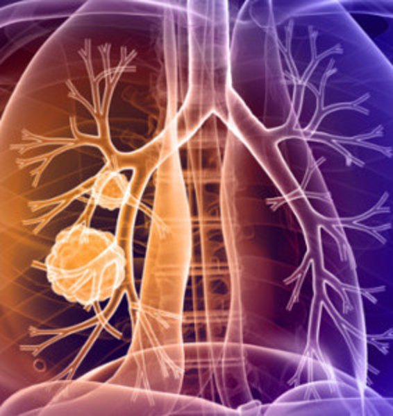 RESEARCH - New Understanding of Pulmonary Tumors
