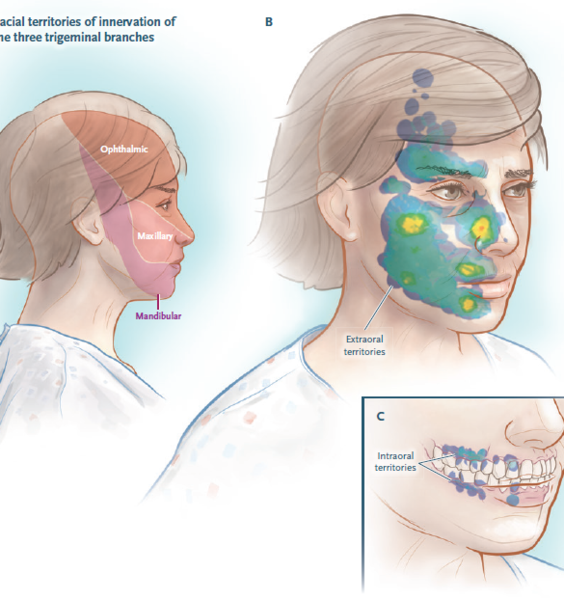Sapienza research on trigeminal neuralgia published on the journal with the highest impact factor
